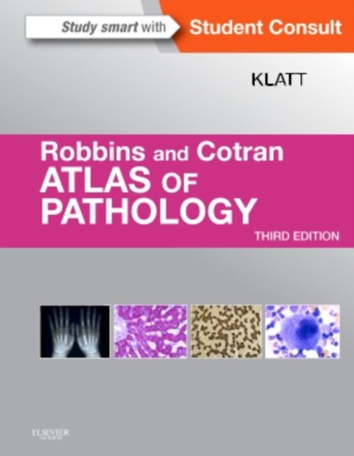 Robbins and Cotran Atlas of Pathology